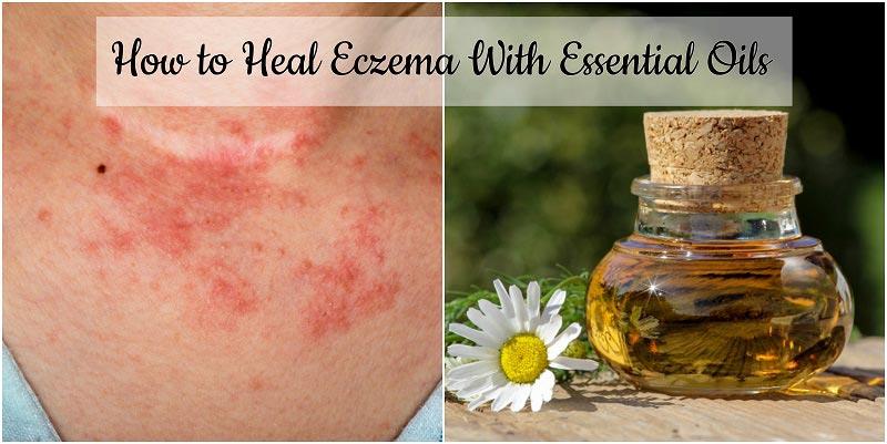 Eczema-essential-oils