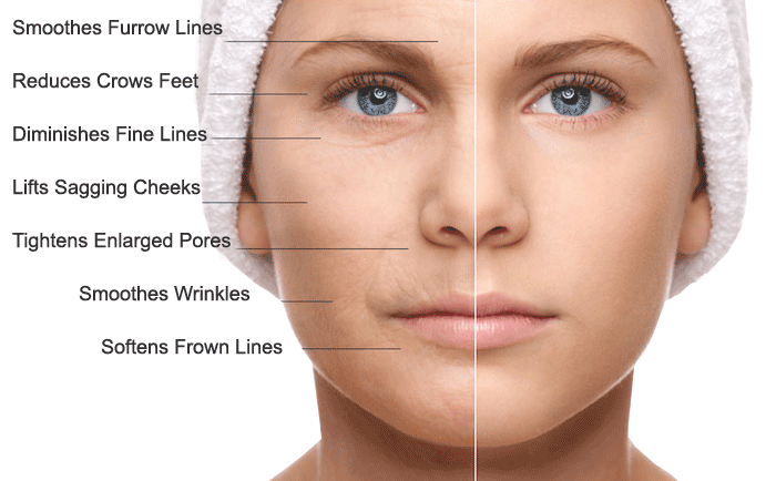 The Miracle of MicroNeedling    and the Stars Who Get It