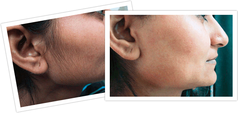 Faqs For Laser Hair Removal With The Soprano Ice Rosemary Fusca Blog